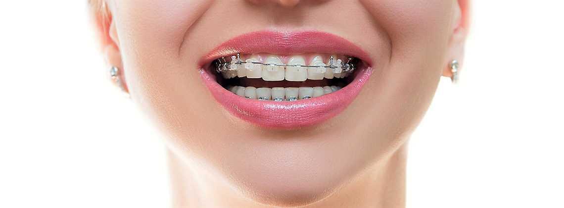 Ортодонтия. Возрастные Ограничения