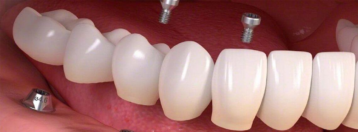 Какие есть виды зубных имплантов?