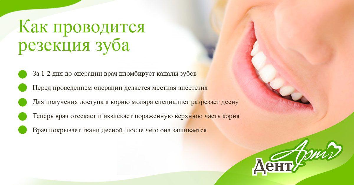 резакция зуба 2