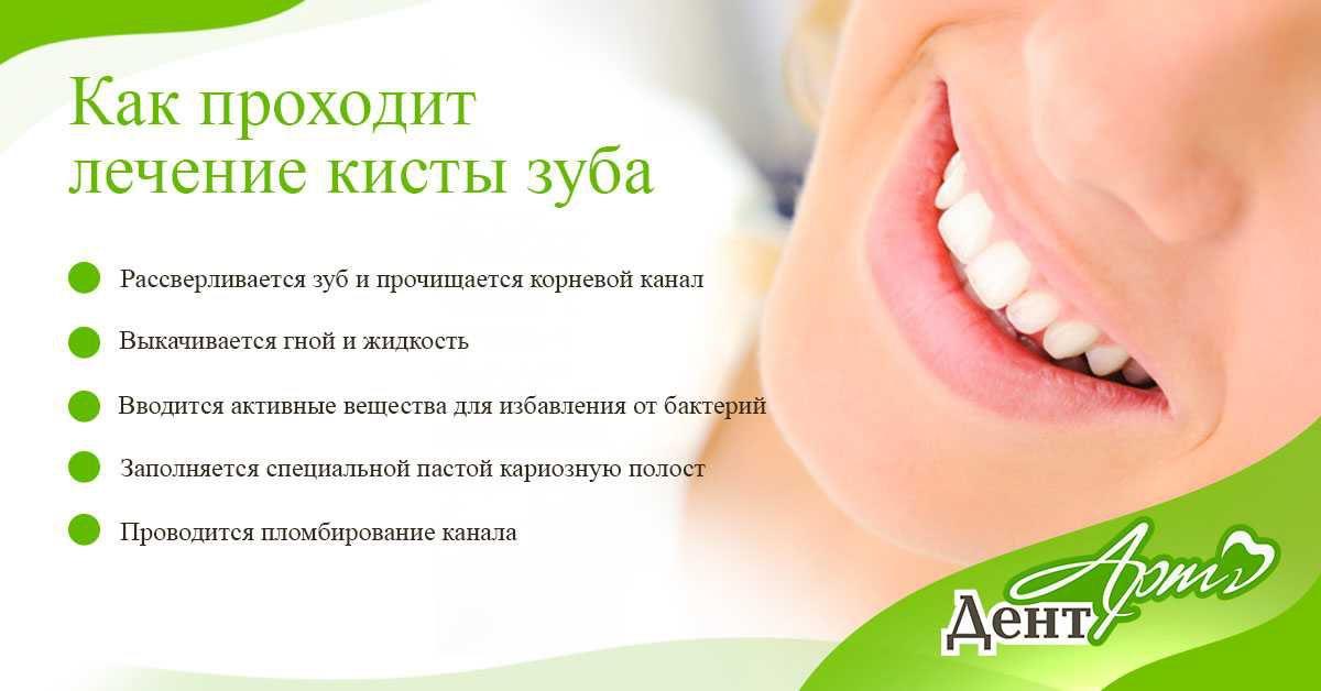 удаление кисты зуба 2