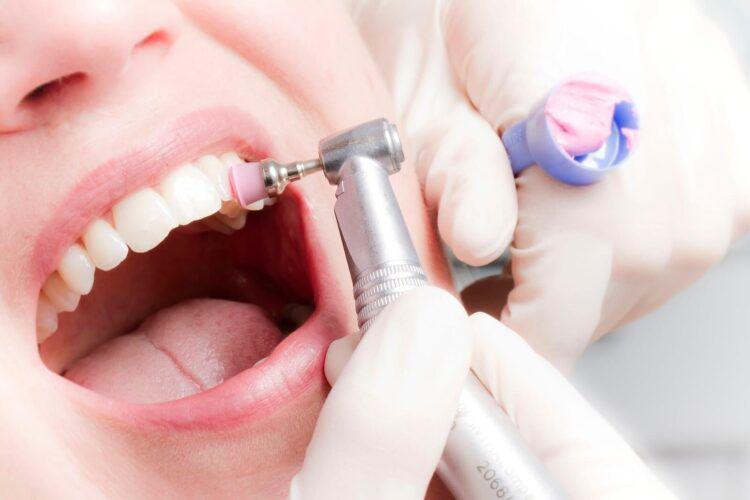 Эффективность гигиены полости рта: методы домашнего и профессионального ухода