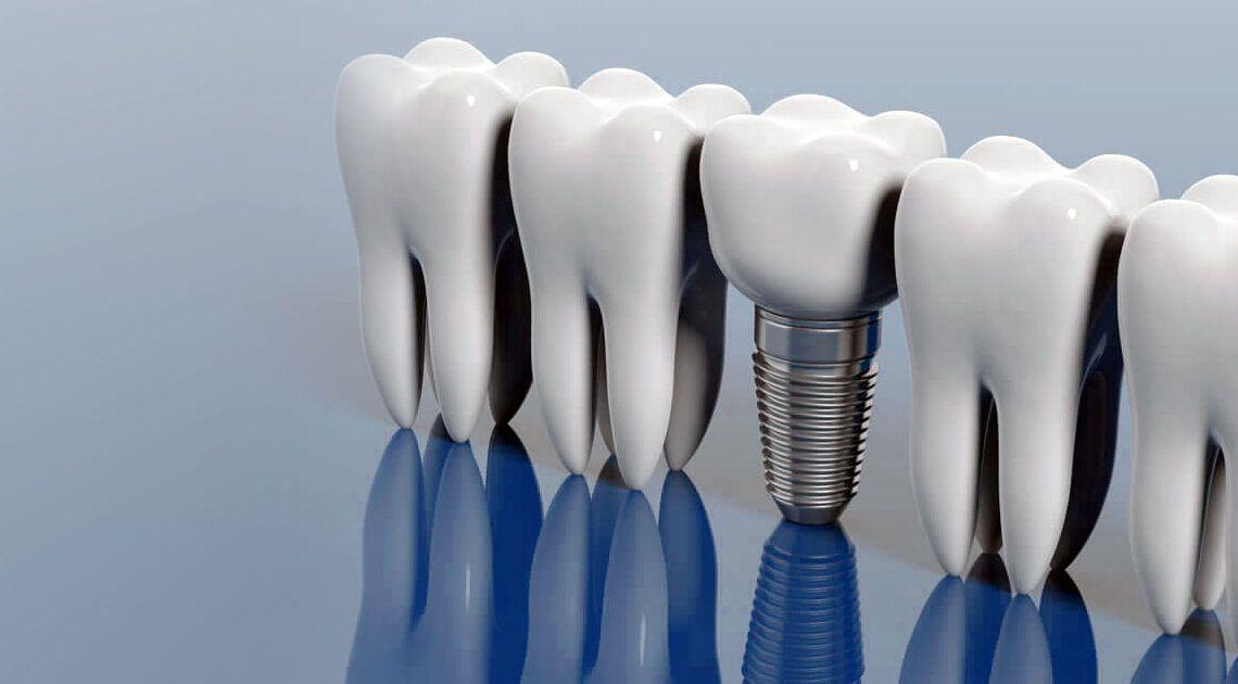 Какие есть плюсы и минусы имплантации зубов?