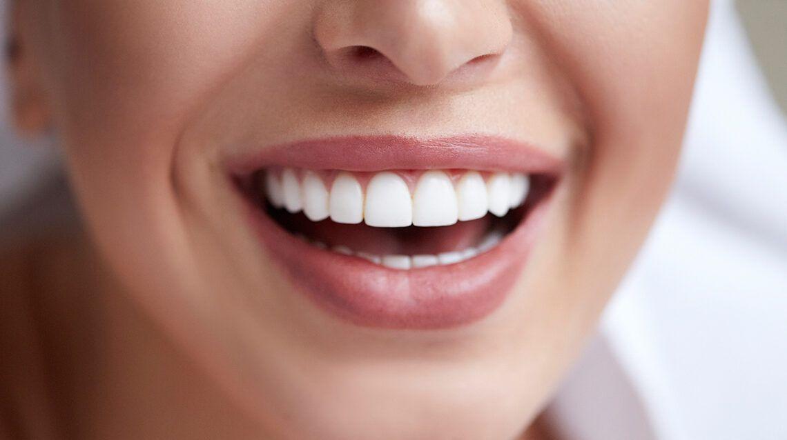 Чем профессиональные методы отбеливания зубов лучше домашних средств?