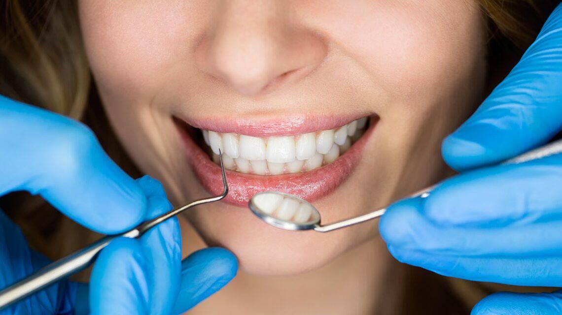 Какие есть виды и методы реставрации зубов?
