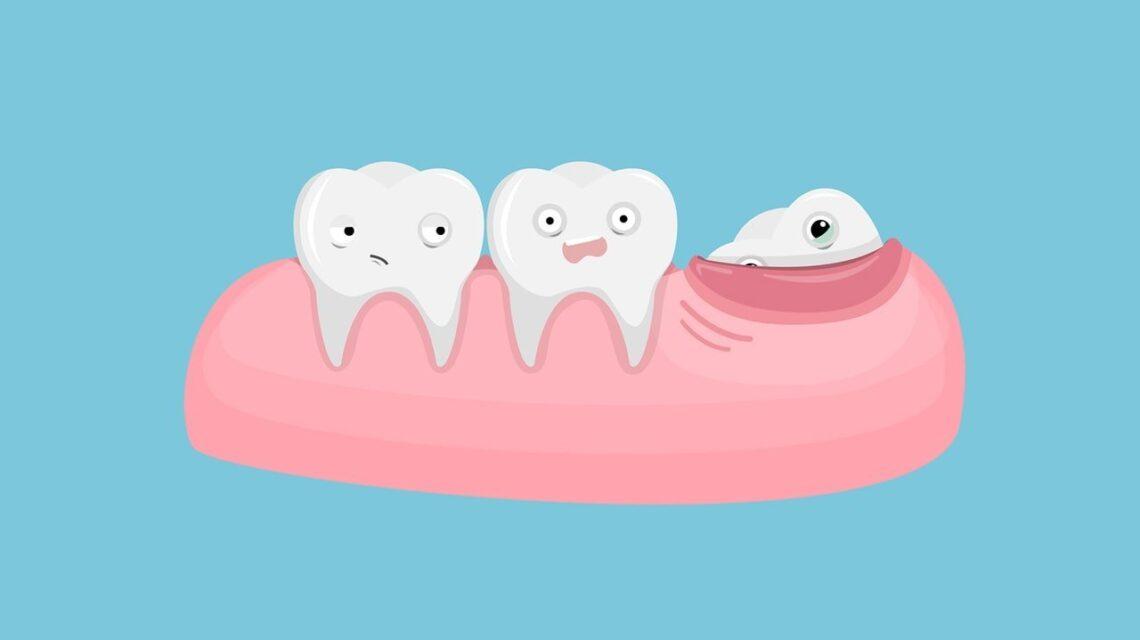 Болит зуб мудрости что делать?