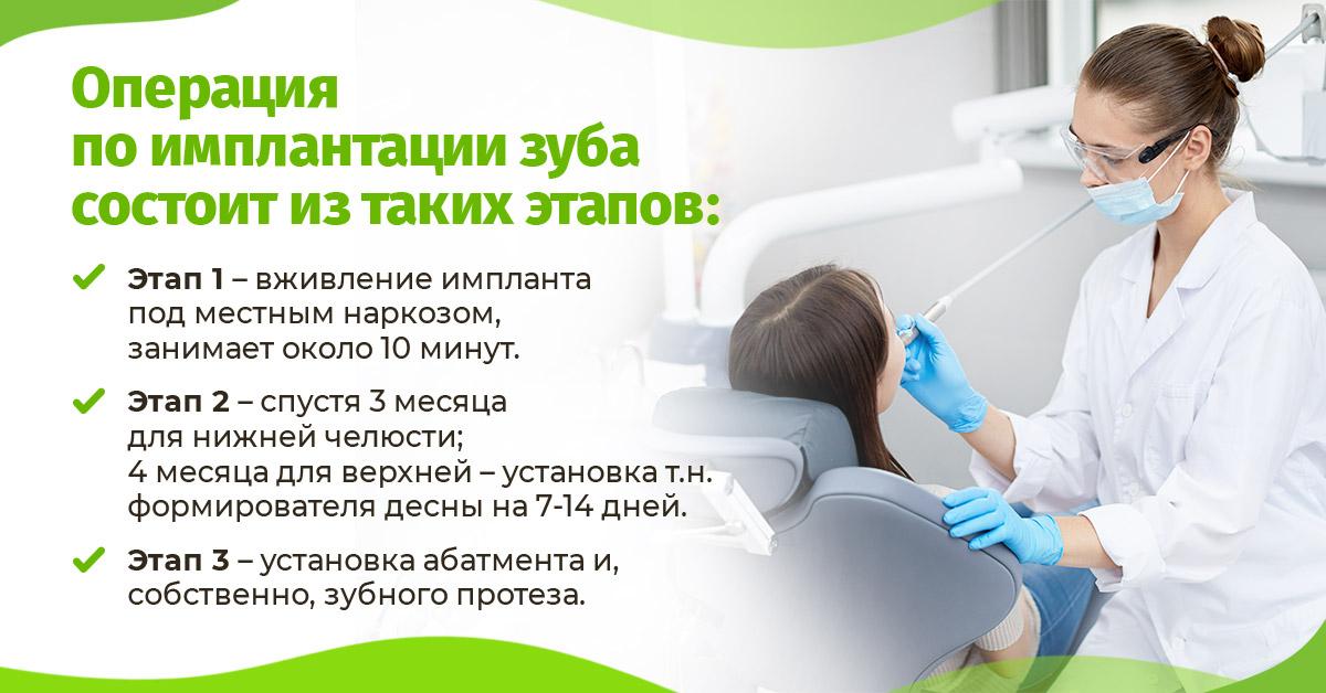 Операция по имплантации зуба состоит из таких этапов: