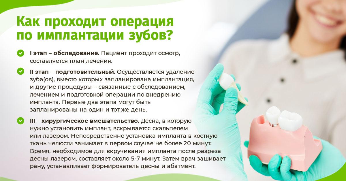 Собственно, как проходит операция по имплантации зубов? Разберём этот процесс по частям.