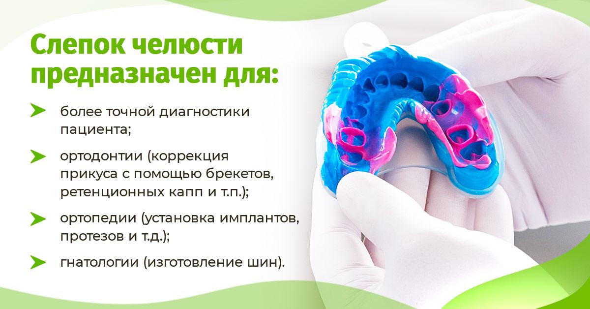 Слепок челюсти: предназначение
