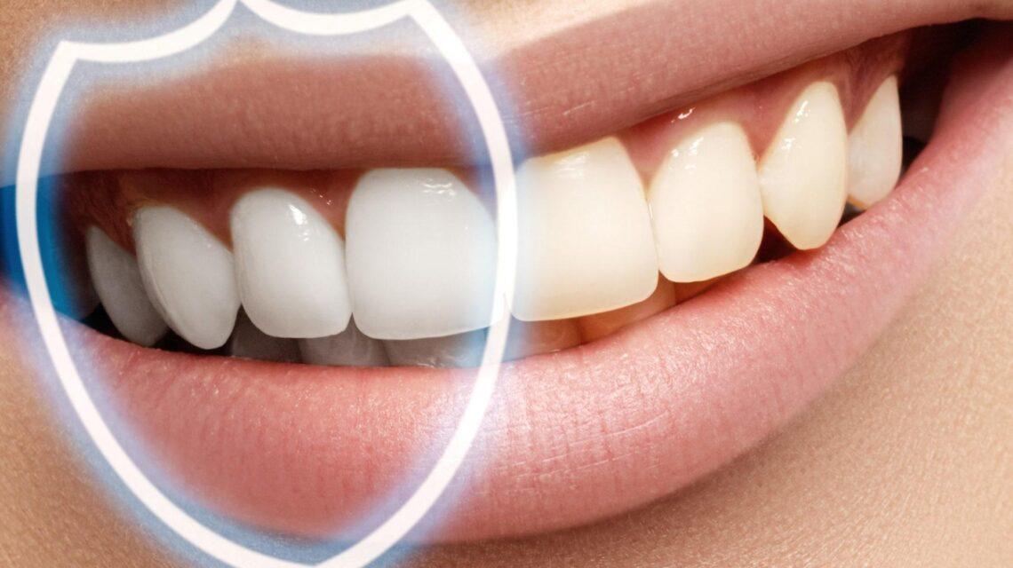 Что такое фторирование зубов?